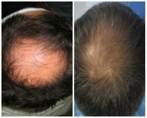 autotrapianto capelli risultati prima e dopo