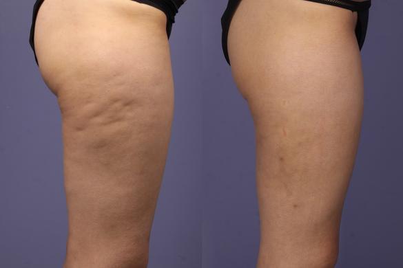 carbossiterapia riduzione cellulite e adiposità