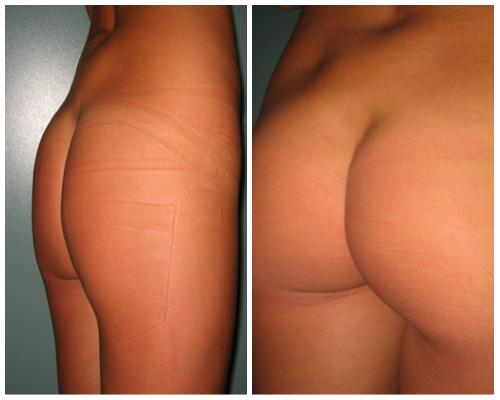 chirurgia plastica gluteoplastica risultati intervento prima e dopo