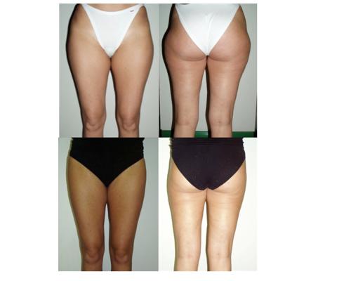 chirurgia plastica Liposuzione Glutei e Gambe risultati prima e dopo trattamento