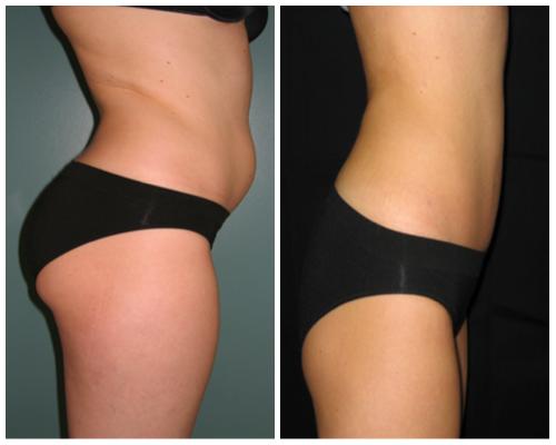 chirurgia plastica Liposuzione addome risultati prima e dopo intervento