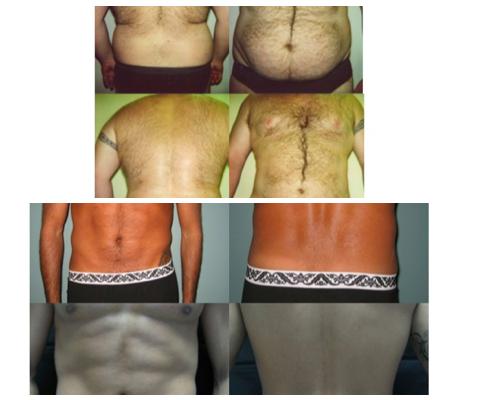 liposuzione e addominoplastica risultati intervento su addome maschile