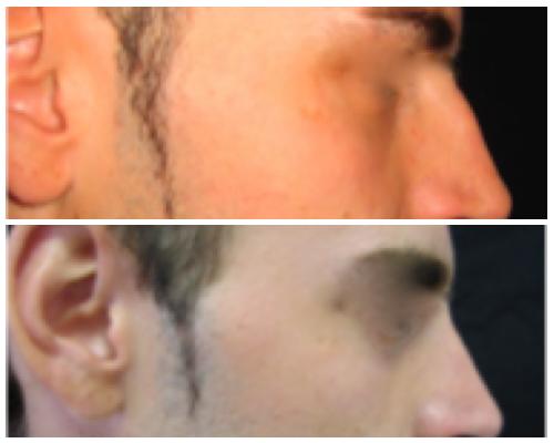 rinoplastica risultati dell'intervento prima e dopo