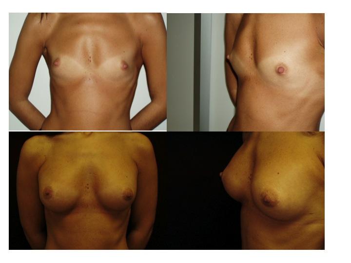 mastoplastica additiva risultati prima e dopo intervento