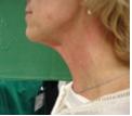 biorivitalizzazione effetti trattamento