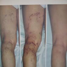 disturbi vascolari trattamento varici prima e dopo terapia TRAP