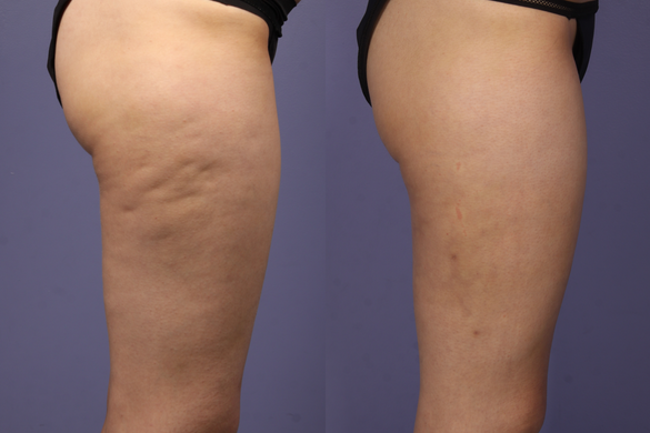 trattamenti cellulite carbossiterapia prima e dopo