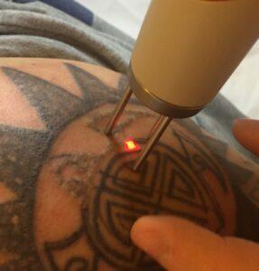 medicina estetica centro laser rimozione tatuaggi