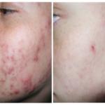 medicina estetica centro laser trattamento acne attiva