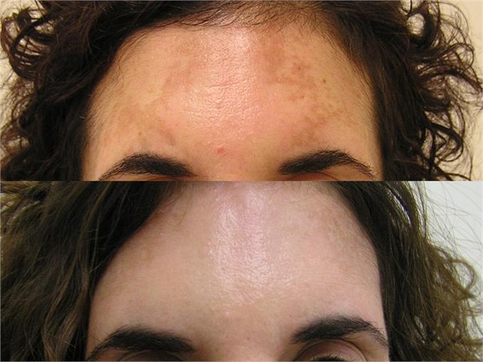 laser rimozione macchie solari e della pelle prima e dopo trattamento