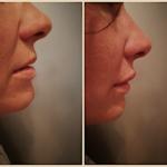 medicina estetica Filler labbra correttivi con acido ialuronico
