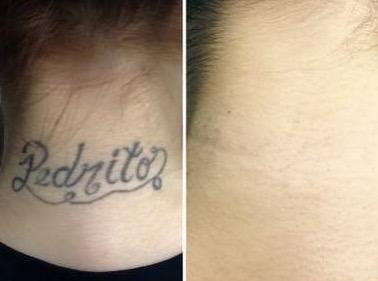 laser rimozione tatuaggi risultati trattamento prima e dopo