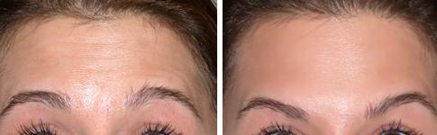 trattamento rughe della fronte con botulino prima e dopo