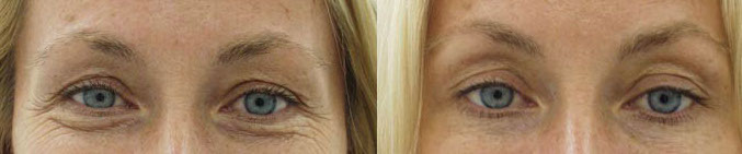 trattamento rughe prima e dopo botulino