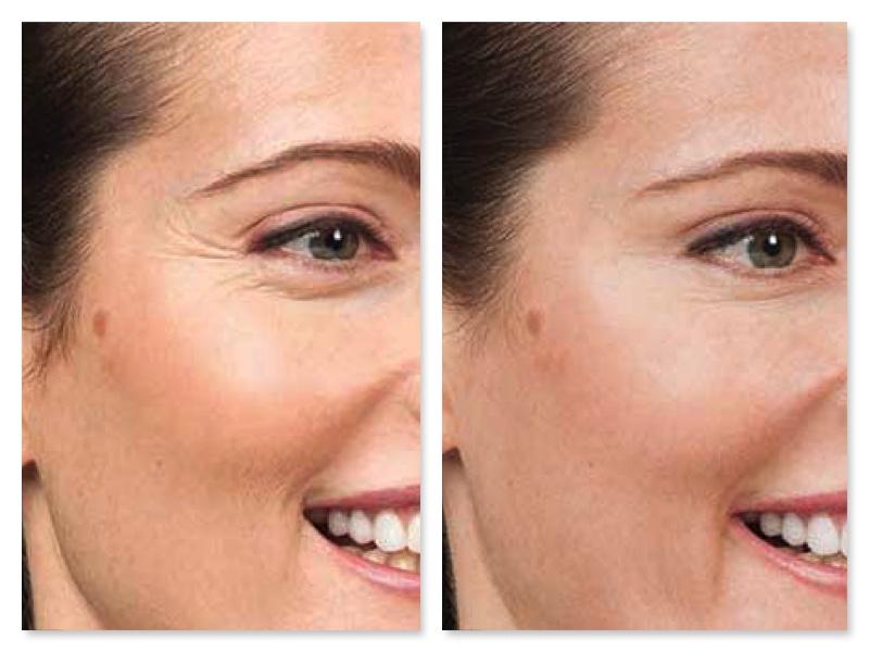 trattamento rughe con botulino prima e dopo