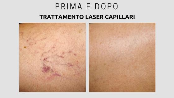Trattamento Capillari con Laser Terapia