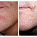 medicina estetica rimozione capillari viso