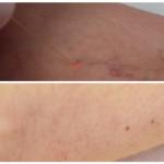 medicina estetica trattamento laser capillari corpo