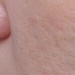 medicina estetica laser estetico trattamento laser cicatrici acne