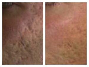 centro laser trattamento laser cicatrici acne