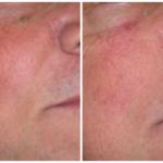 medicina estetica centro laser rimozione cheratosi