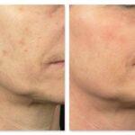 centro laser trattamenti ringiovanimento viso