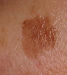 medicina estetica laser estetico trattamento macchie solari