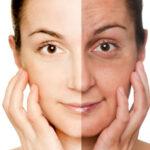 medicina estetica ringiovanimento viso botox