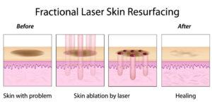 laser co2 frazionato cicatrici da acne