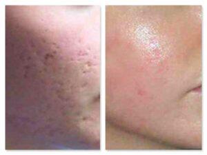 laser cicatrici acne laser co2 frazionato risultati prima e dopo