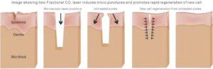 laser cicatrici acne laser co2 frazionato