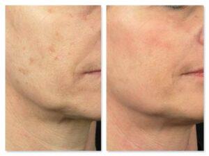 centro laser ringiovanimento viso