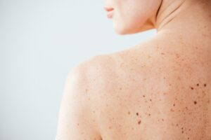 cropped view of diseased and naked woman with moles on skin on white