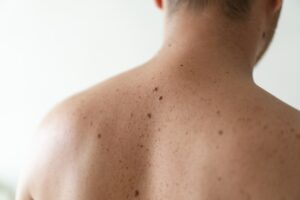 Close up detail of the bare skin on a man back with scattered moles and freckles.