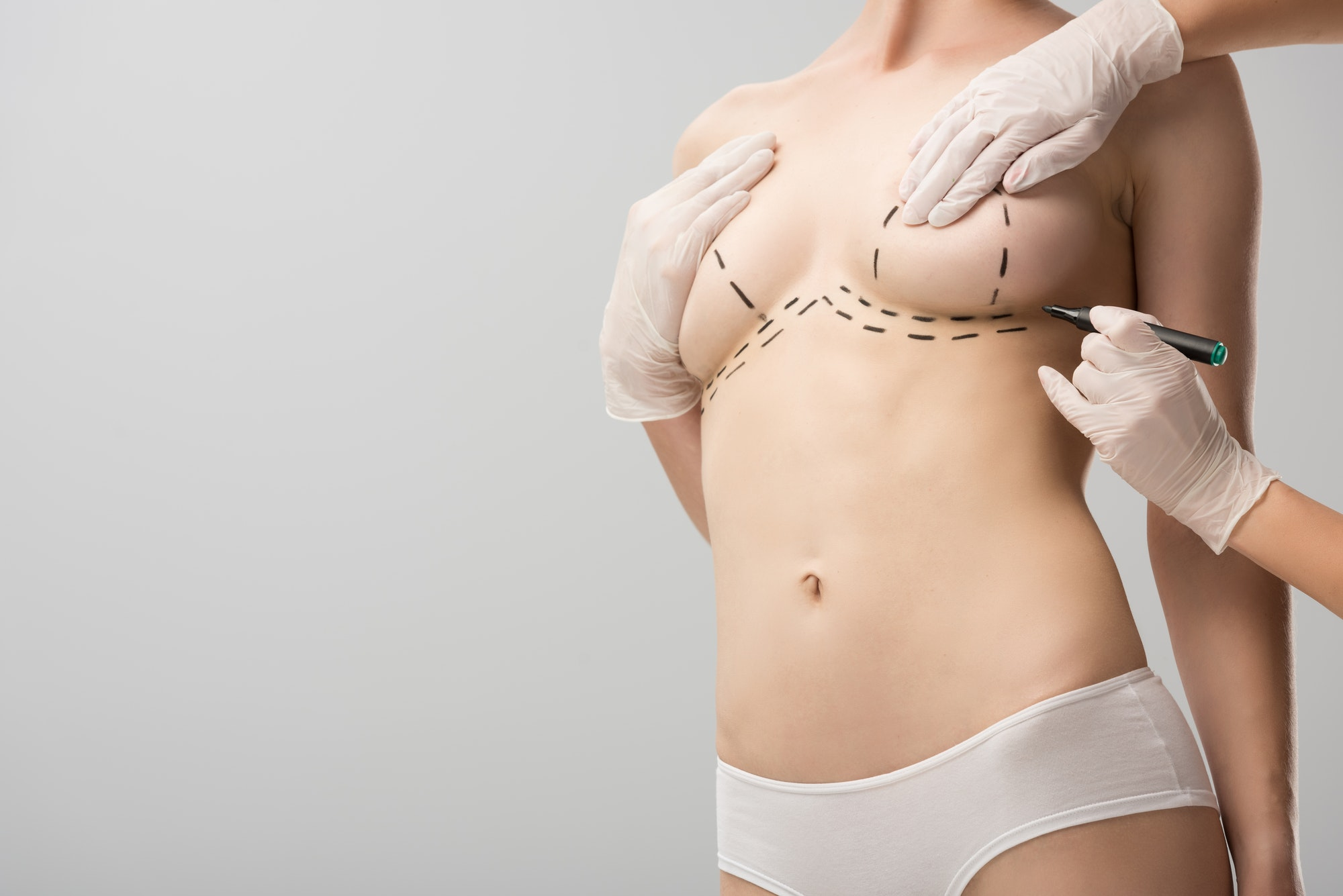 cropped view of plastic surgeon in latex gloves making marks on breast isolated on grey