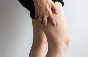 Varicose veins on the elderly woman legs,Close up