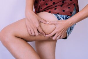 Woman hands touching cellulite on legs skin excess and overweight fat of female on white background
